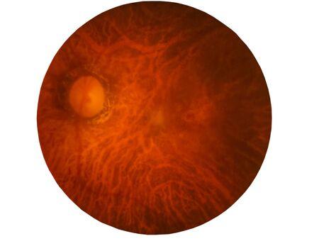 Retina of diabetes , diabates retinopathy,photo Medical Retina Abnormal isolated on white background. Stock Photo