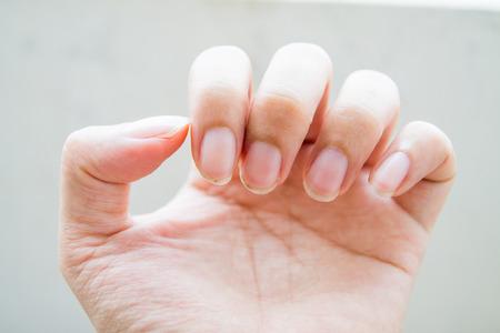 nail dirty