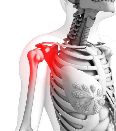 dolor hombro: Ilustraci�n de obra dolor en el hombro