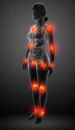Illustration of female body all joint pain