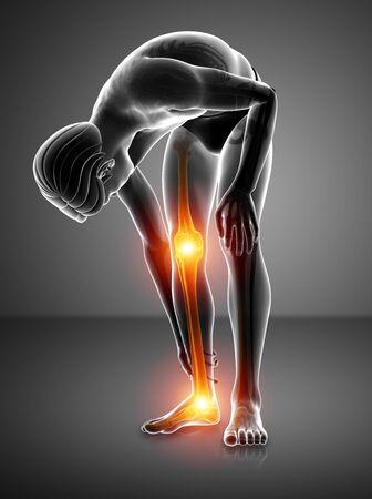 ortopedia: 3d ilustración de dolor en las piernas Foto de archivo