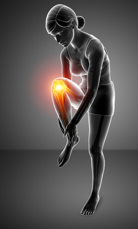 3d Illustration of Women Knee pain Stock Photo