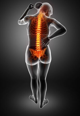 ortopedia: 3d ilustración de la Mujer Al sentir el dolor de espalda