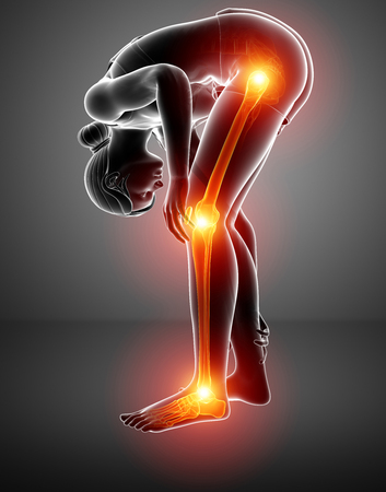 health club: 3d illustration of Pain in leg Stock Photo