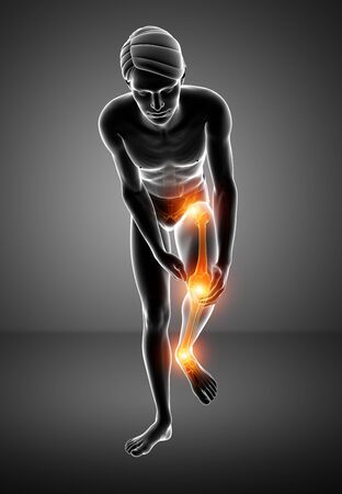 orthopedics: 3d Illustration of Male Leg Joint Pain Stock Photo