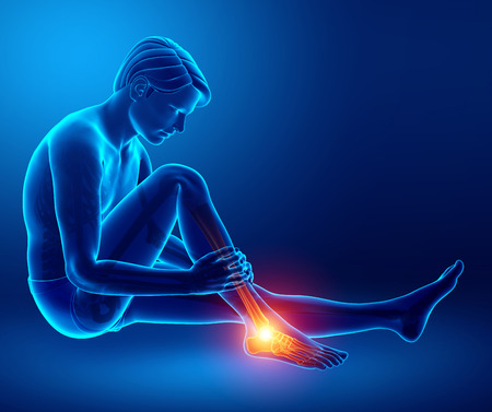 foot pain: 3d Illustration of Male foot with ankle pain Stock Photo