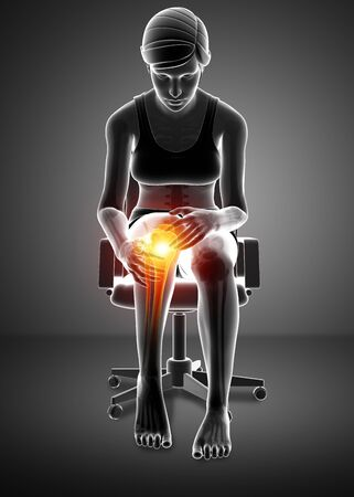 adult only: 3d Illustration of Women Knee pain Stock Photo