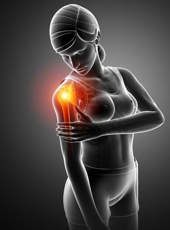 the topics: 3d Illustration of Women Feeling the Shoulder Pain