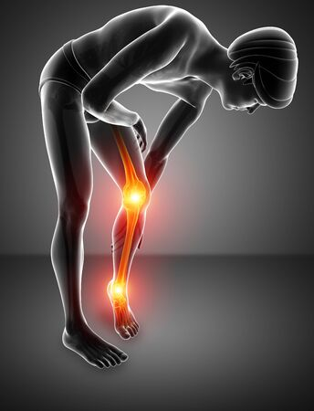 health club: 3d Illustration of Pain in leg