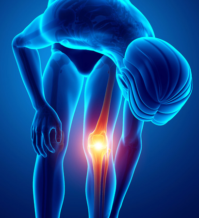 orthopedics: 3d Illustration of Male Knee pain