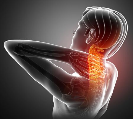 orthopedics: 3d Illustration of men Feeling the Neck Pain