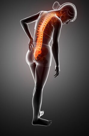 orthopedics: 3d Illustration of Women Feeling the Back pain Stock Photo