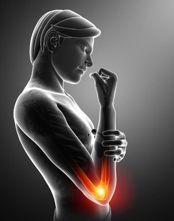 one person only: 3d Illustration of Women Feeling the Elbow Pain