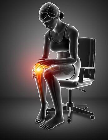 3d ilustración de la Mujer El dolor de rodilla