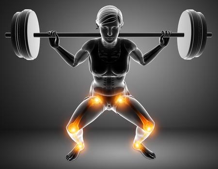 adult only: 3d Illustration of Women Leg joint pain