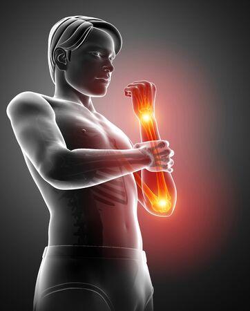 3d Illustration of Men Feeling the Elbow Pain