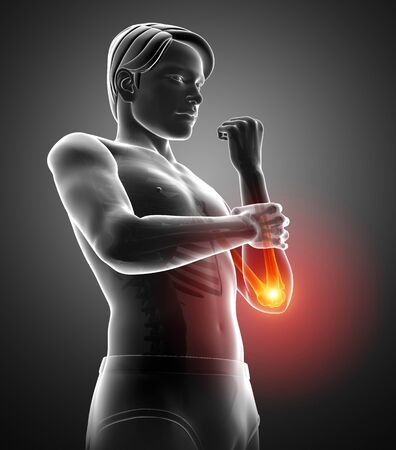 3d Illustration of Men Feeling the Elbow Pain