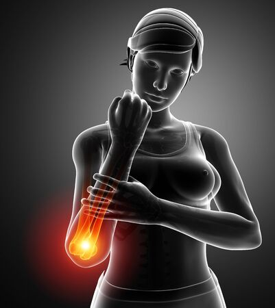 3d Illustration of Women Feeling the Wrist Pain
