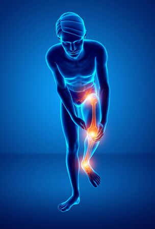 adult only: 3d Illustration of Male Leg Joint Pain Stock Photo