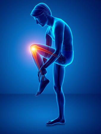 ortopedia: 3d Illustration of Male Knee pain