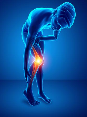 ortopedia: 3d ilustración de dolor de rodilla masculina Foto de archivo