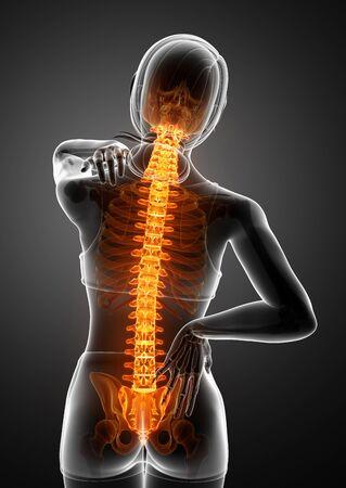 3d Illustration of Women Feeling the Back pain Stock Photo