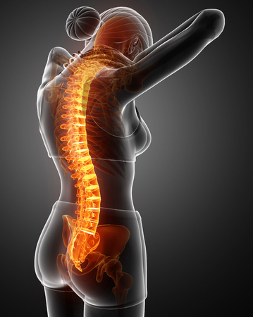 3d Illustration of Women Feeling the Back pain Stock fotó