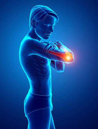 3d Illustration of Men Feeling Elbow pain Stock Photo