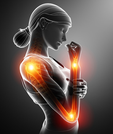 3d Illustration of Women Feeling Arm joint pain Stock Photo
