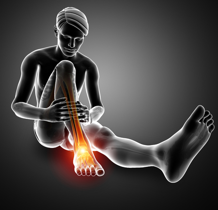 3d Illustration of Male foot with ankle pain Banco de Imagens