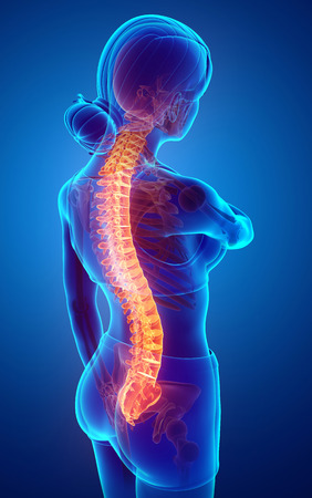 3d Illustration of Women Feeling the Back pain Stock Photo