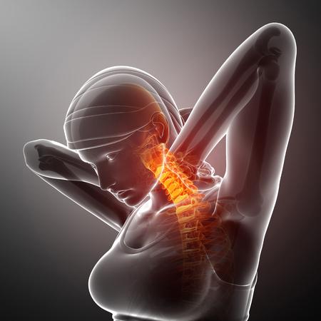 ortopedia: 3d ilustración de la Mujer sentir el dolor de cuello