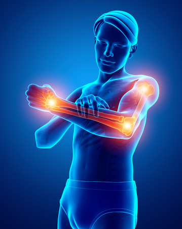 3d Illustration of Men Feeling Arm joint pain