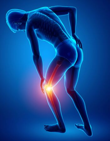 adult only: 3d Illustration of Male Knee pain