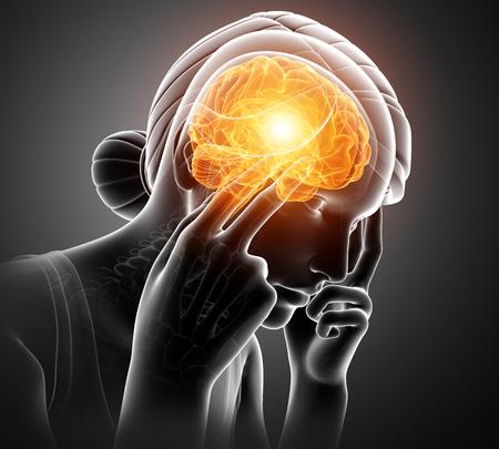 overworked: 3d Illustration of Women Feeling Headache
