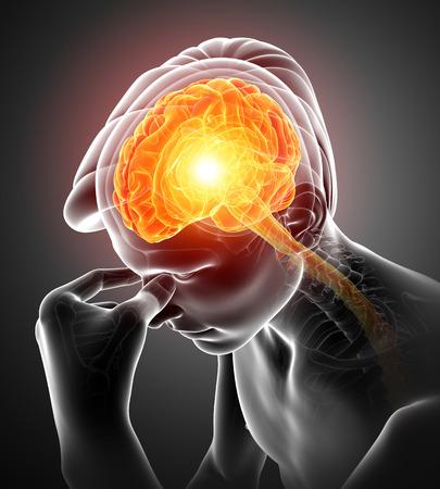 overworked: 3d Illustration of Male Feeling Headache