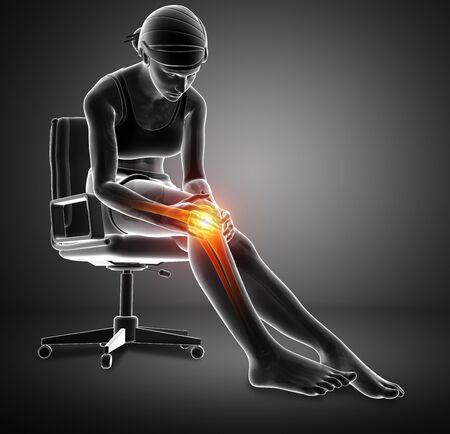 ortopedia: 3d ilustración de la Mujer El dolor de rodilla