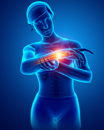 one person only: 3d Illustration of Women Feeling the Wrist Pain