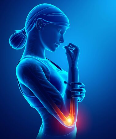 3d Illustration of Women Feeling the Elbow Pain