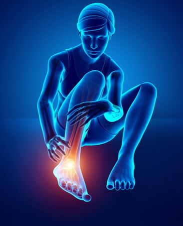 3d illustration of Female foot with ankle pain
