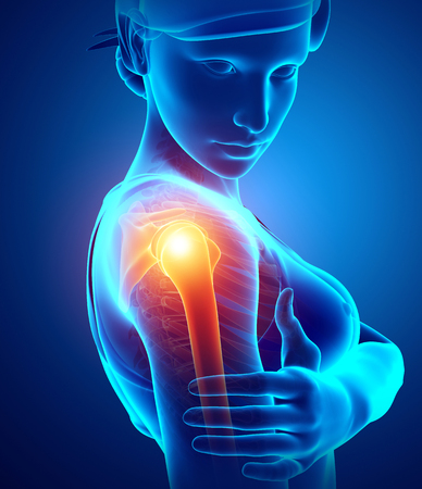 3d Illustration of Women Feeling the Shoulder Pain