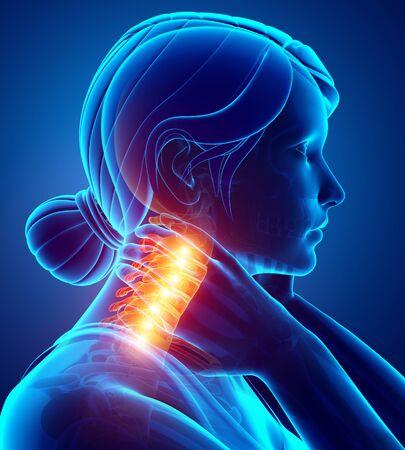 3d Illustration of Women Feeling Neck Pain Stock Photo