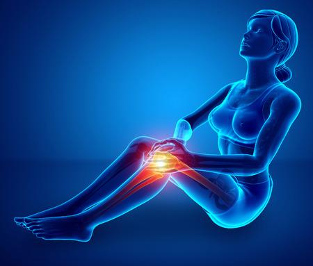 cramp: 3d Illustration of Women Knee pain Stock Photo