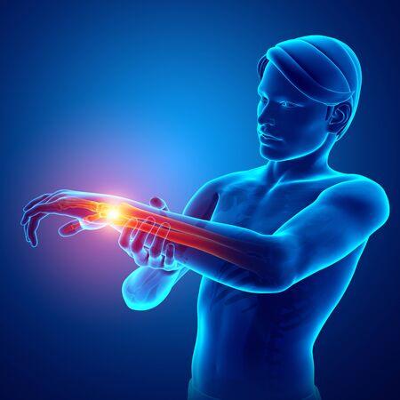 3d Illustration of Men Feeling the Wrist Pain