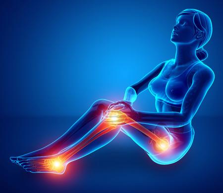 ortopedia: 3d Illustration of Women Leg joint pain