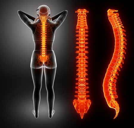 BACK bone: 3d Illustration of Women Feeling the Back pain Stock Photo