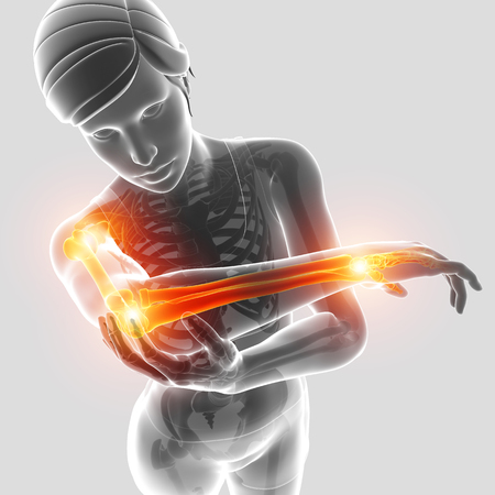 3d Illustration of Female Feeling Arm joint pain
