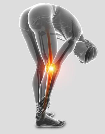 ortopedia: 3d ilustración de sentir dolor de rodilla masculina