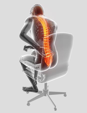 3D Illustration of male Feeling the back pain Reklamní fotografie - 72679871