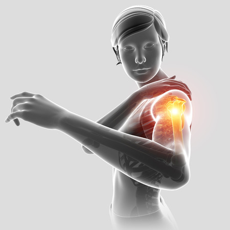 3d Illustration of Female Feeling the Shoulder Pain